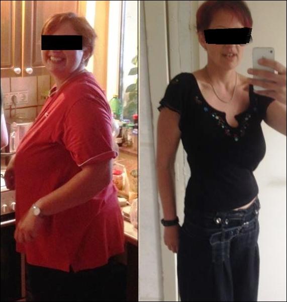 híres zsírégető hogyan lehet elveszíteni kar kövér nő